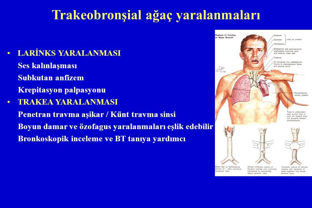 Trakeobronşial ağaç yaralanmaları LARİNKS YARALANMASI Ses kalınlaşması Subkutan anfizem Krepitasyon palpasyonu TRAKEA YARALANMASI Penetran travma aşik