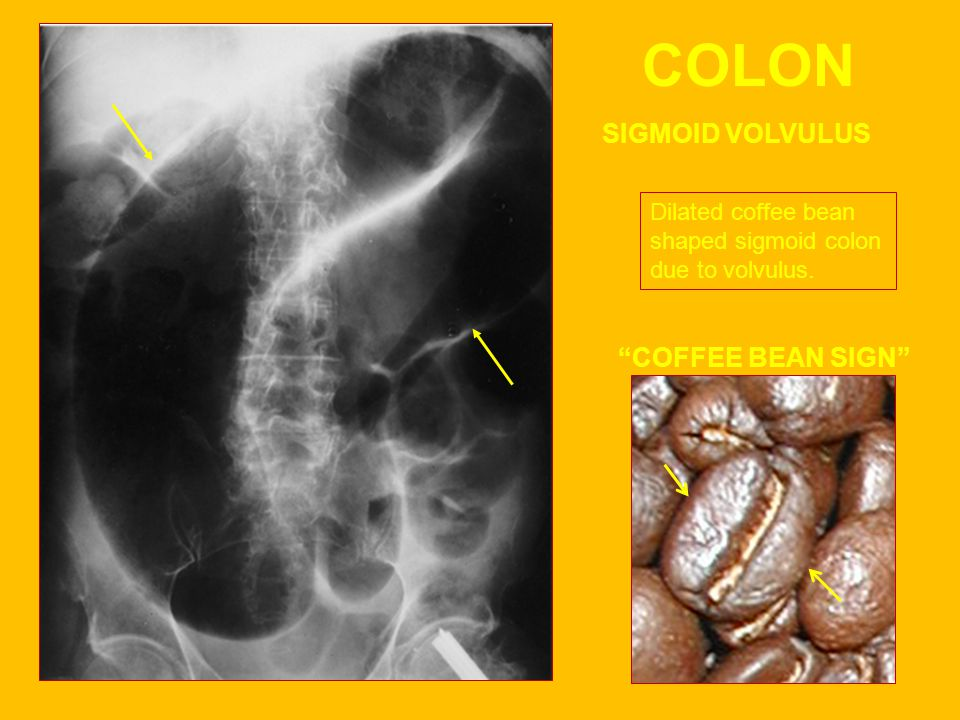 COLON SIGMOID VOLVULUS COFFEE BEAN SIGN Dilated coffee bean shaped sigmoid colon due to volvulus.