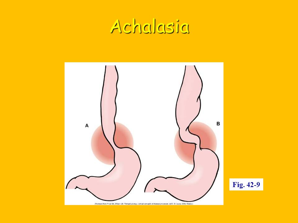 Achalasia Fig. 42-9
