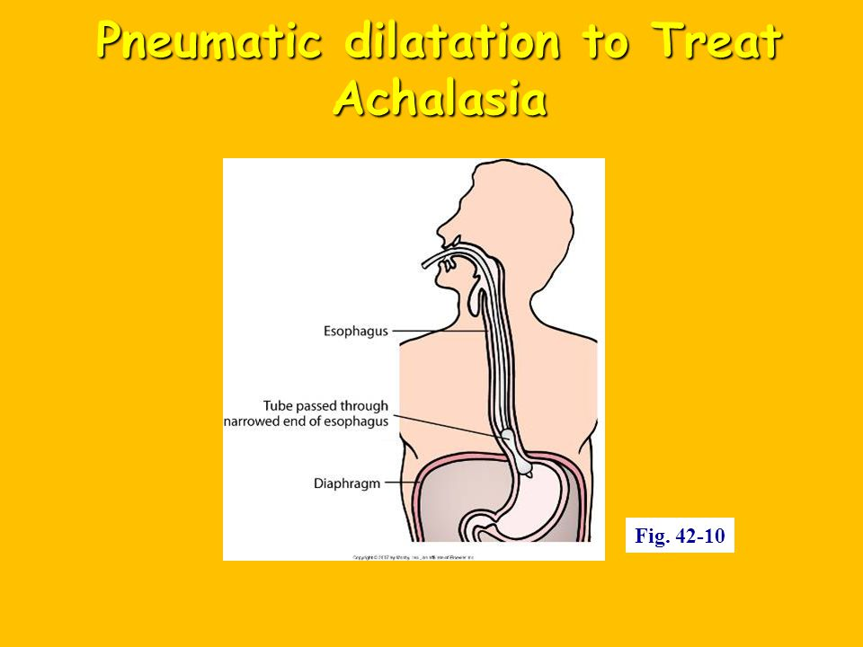 Pneumatic dilatation to Treat Achalasia Fig. 42-10