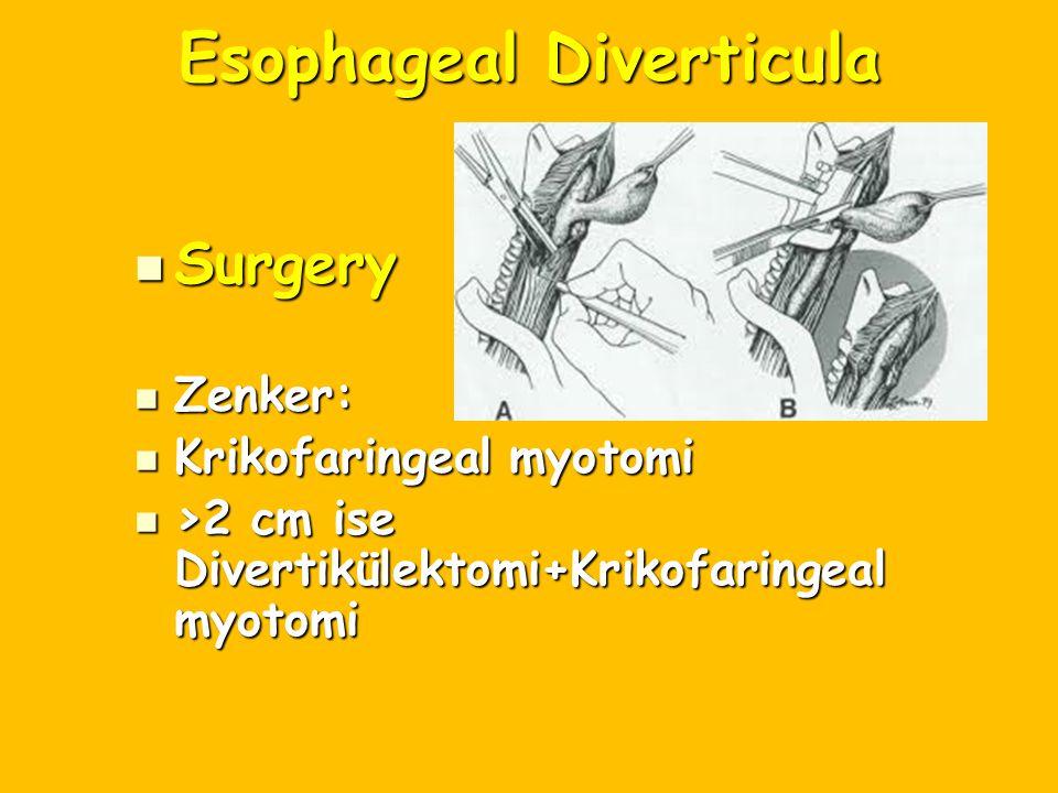 Esophageal Diverticula Surgery Surgery Zenker: Zenker: Krikofaringeal myotomi Krikofaringeal myotomi >2 cm ise Divertikülektomi+Krikofaringeal myotomi