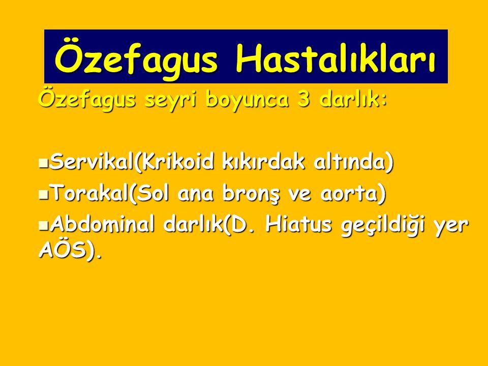 Özefagus Hastalıkları Özefagus seyri boyunca 3 darlık: Servikal(Krikoid kıkırdak altında) Servikal(Krikoid kıkırdak altında) Torakal(Sol ana bronş ve