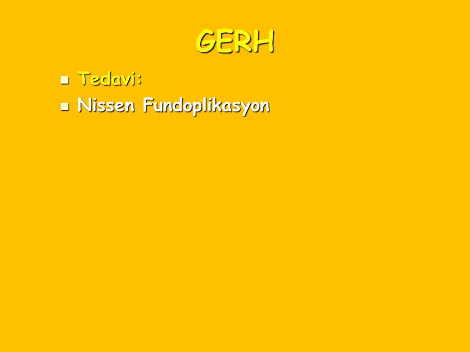 GERH Tedavi: Tedavi: Nissen Fundoplikasyon Nissen Fundoplikasyon