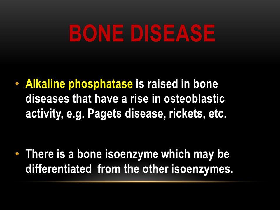 BONE DISEASE Alkaline phosphatase Alkaline phosphatase is raised in bone diseases that have a rise in osteoblastic activity, e.g. Pagets disease, rick