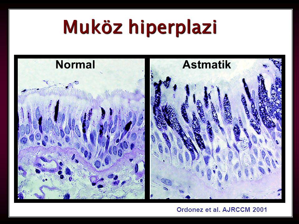 17 Muköz hiperplazi AstmatikNormal Ordonez et al. AJRCCM 2001