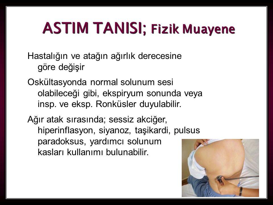 25 ASTIM TANISI; Fizik Muayene Hastalığın ve atağın ağırlık derecesine göre değişir Oskültasyonda normal solunum sesi olabileceği gibi, ekspiryum sonu