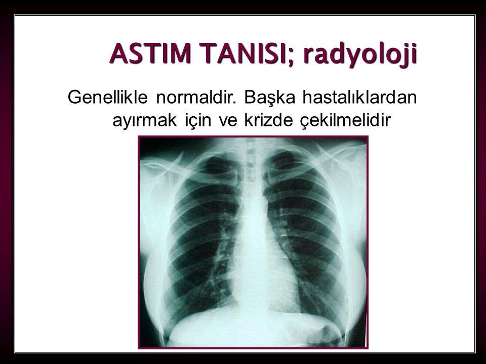 26 ASTIM TANISI; radyoloji Genellikle normaldir. Başka hastalıklardan ayırmak için ve krizde çekilmelidir