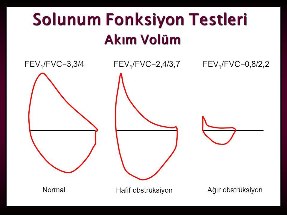 29 FEV 1 /FVC=3,3/4FEV 1 /FVC=2,4/3,7FEV 1 /FVC=0,8/2,2 Normal Hafif obstrüksiyon Ağır obstrüksiyon Solunum Fonksiyon Testleri Akım Volüm