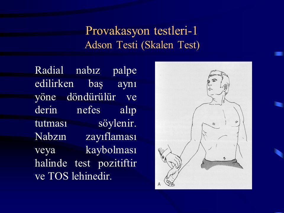Provakasyon testleri-1 Adson Testi (Skalen Test) Radial nabız palpe edilirken baş aynı yöne döndürülür ve derin nefes alıp tutması söylenir. Nabzın za