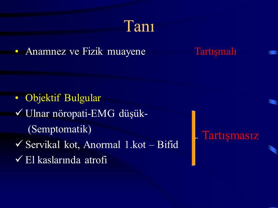 Tanı Anamnez ve Fizik muayene Objektif Bulgular Ulnar nöropati-EMG düşük- (Semptomatik) Servikal kot, Anormal 1.kot – Bifid El kaslarında atrofi Tartı