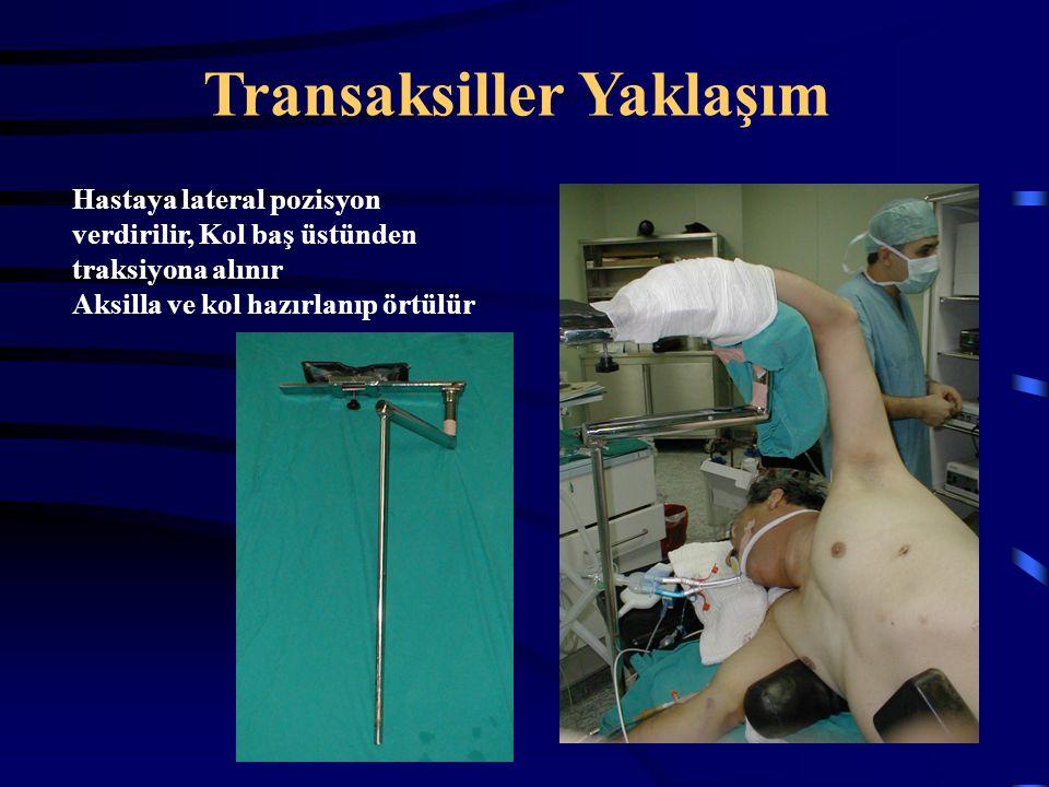 Hastaya lateral pozisyon verdirilir, Kol baş üstünden traksiyona alınır Aksilla ve kol hazırlanıp örtülür Transaksiller Yaklaşım