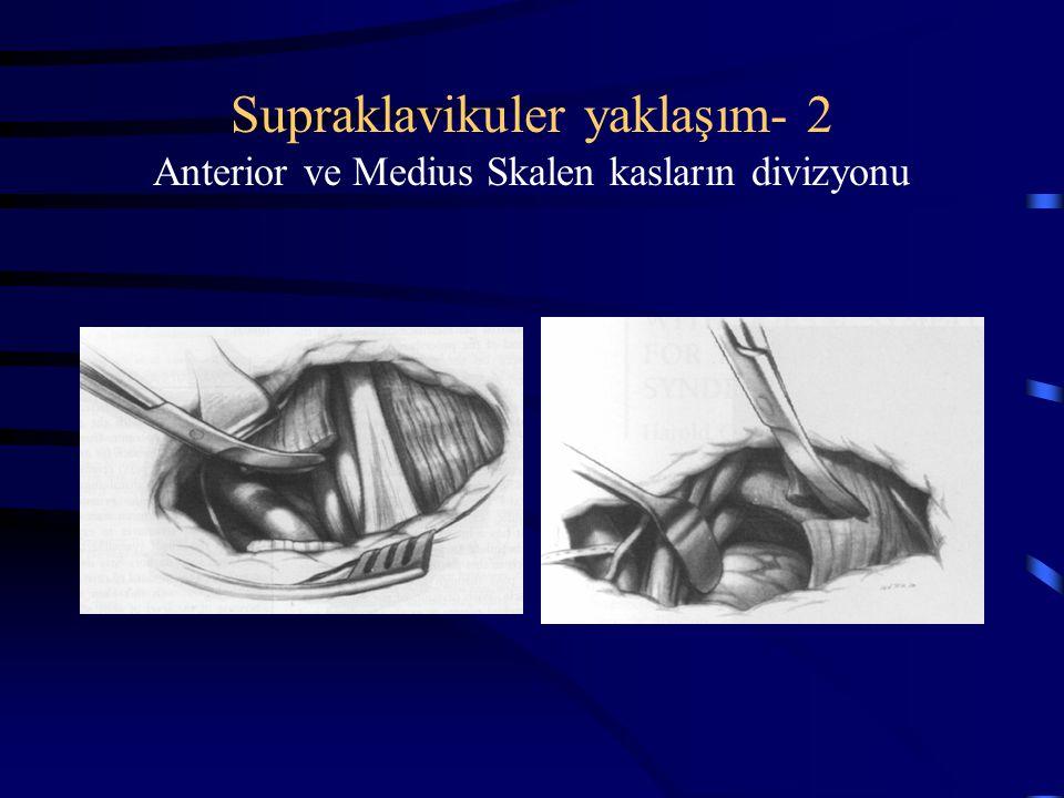 Supraklavikuler yaklaşım- 2 Anterior ve Medius Skalen kasların divizyonu