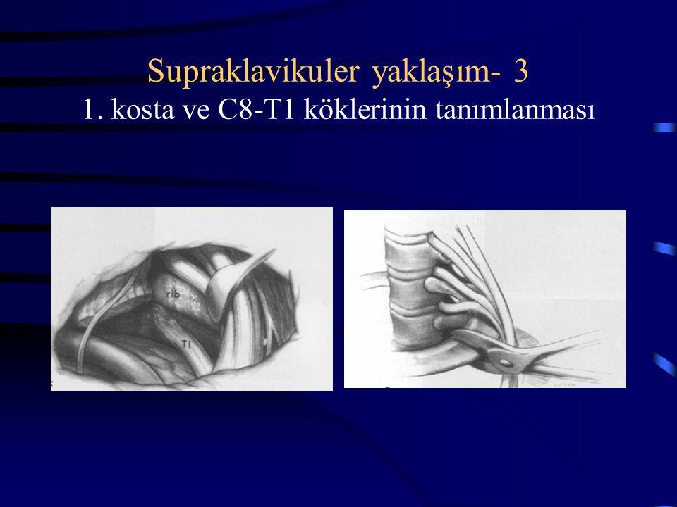 Supraklavikuler yaklaşım- 3 1. kosta ve C8-T1 köklerinin tanımlanması