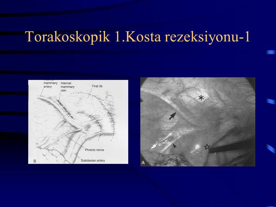 Torakoskopik 1.Kosta rezeksiyonu-1