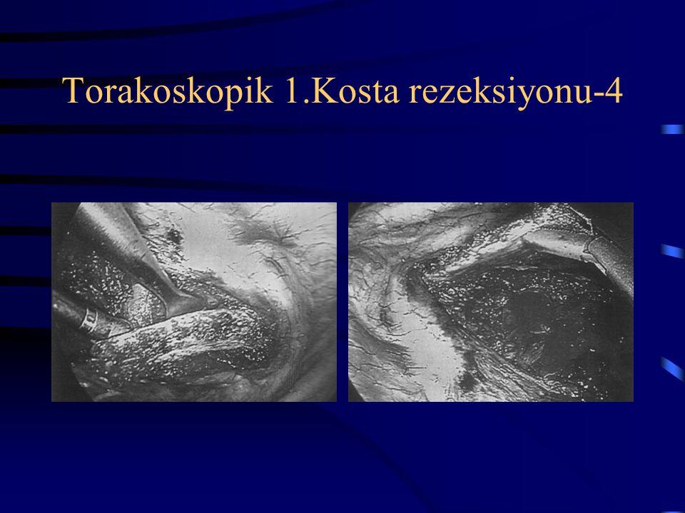 Torakoskopik 1.Kosta rezeksiyonu-4