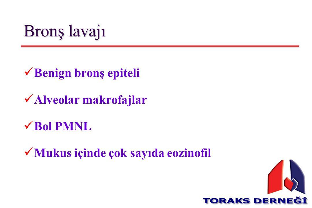 Bronş lavajı Benign bronş epiteli Alveolar makrofajlar Bol PMNL Mukus içinde çok sayıda eozinofil
