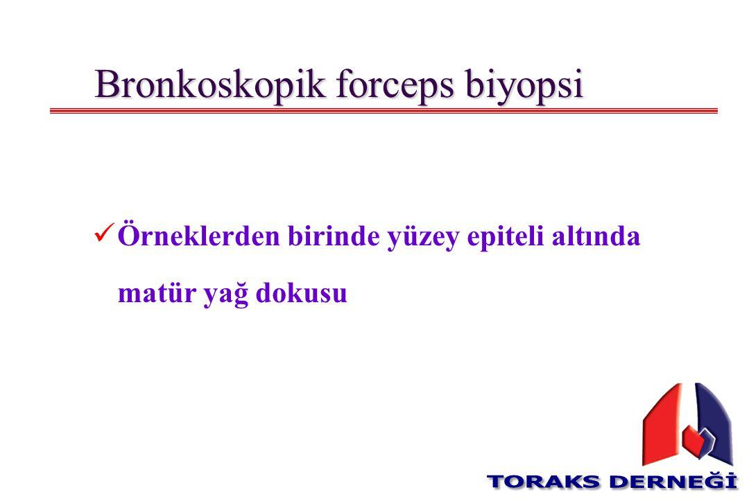Bronkoskopik forceps biyopsi Örneklerden birinde yüzey epiteli altında matür yağ dokusu