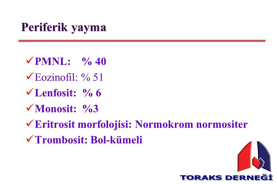 Periferik yayma PMNL: % 40 Eozinofil: % 51 Lenfosit: % 6 Monosit: %3 Eritrosit morfolojisi: Normokrom normositer Trombosit: Bol-kümeli