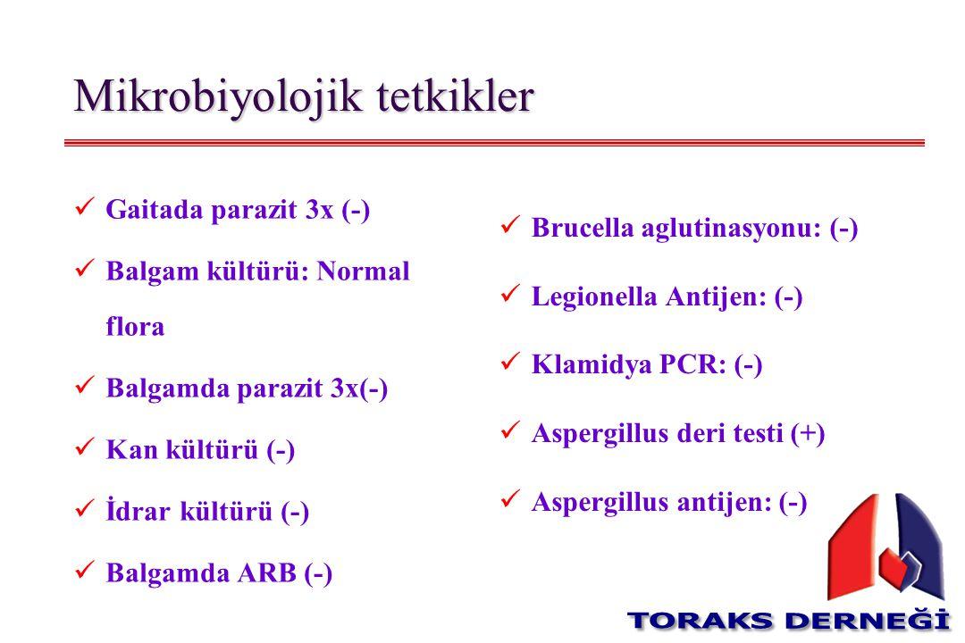 Mikrobiyolojik tetkikler Gaitada parazit 3x (-) Balgam kültürü: Normal flora Balgamda parazit 3x(-) Kan kültürü (-) İdrar kültürü (-) Balgamda ARB (-)