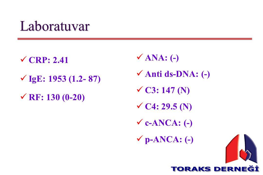 Laboratuvar CRP: 2.41 IgE: 1953 (1.2- 87) RF: 130 (0-20) ANA: (-) Anti ds-DNA: (-) C3: 147 (N) C4: 29.5 (N) c-ANCA: (-) p-ANCA: (-)