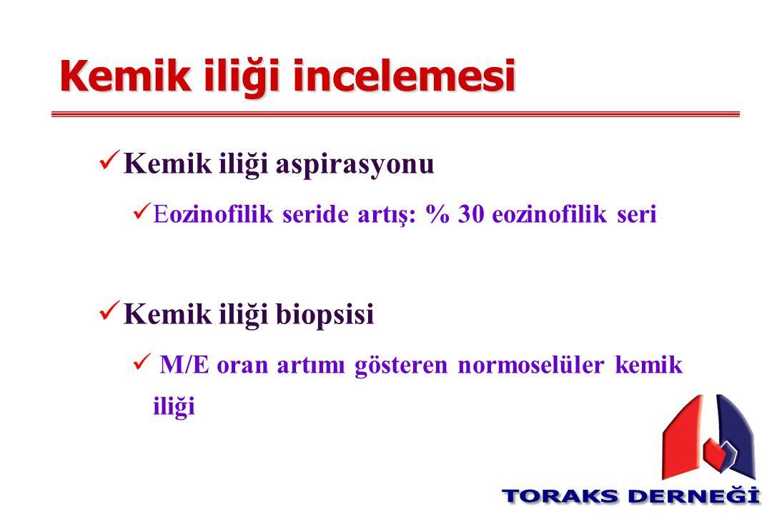 Kemik iliği incelemesi Kemik iliği aspirasyonu Eozinofilik seride artış: % 30 eozinofilik seri Kemik iliği biopsisi M/E oran artımı gösteren normoselü