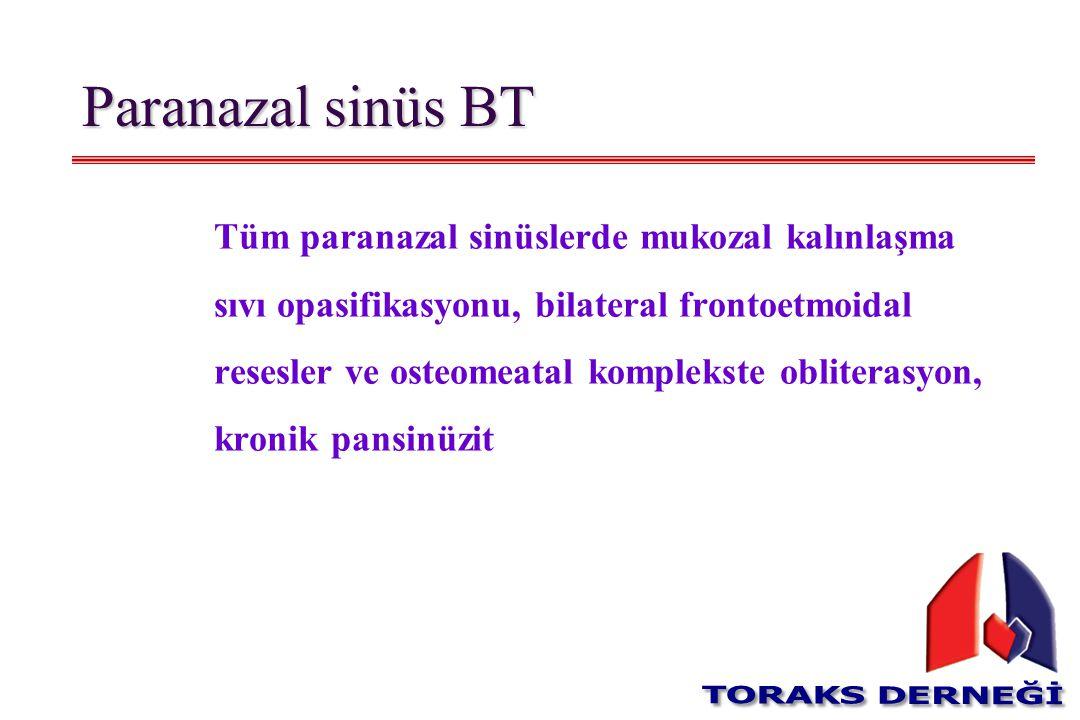 Paranazal sinüs BT Tüm paranazal sinüslerde mukozal kalınlaşma sıvı opasifikasyonu, bilateral frontoetmoidal resesler ve osteomeatal komplekste oblite