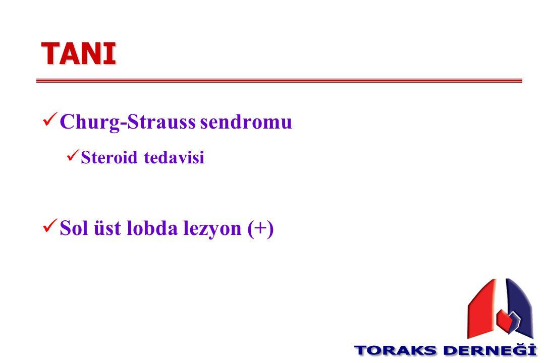 TANI Churg-Strauss sendromu Steroid tedavisi Sol üst lobda lezyon (+)