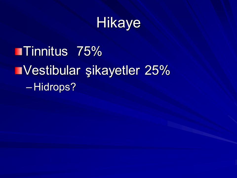 Hikaye Tinnitus 75% Vestibular şikayetler 25% –Hidrops?