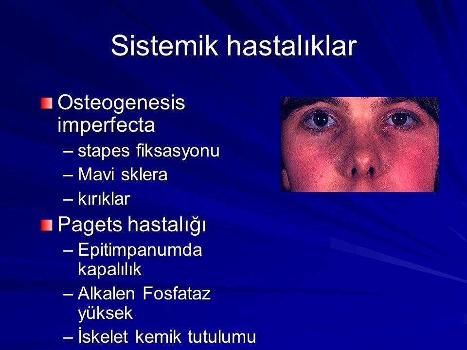 Sistemik hastalıklar Osteogenesis imperfecta –stapes fiksasyonu –Mavi sklera –kırıklar Pagets hastalığı –Epitimpanumda kapalılık –Alkalen Fosfataz yük