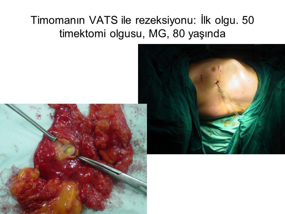 Timomanın VATS ile rezeksiyonu: İlk olgu. 50 timektomi olgusu, MG, 80 yaşında