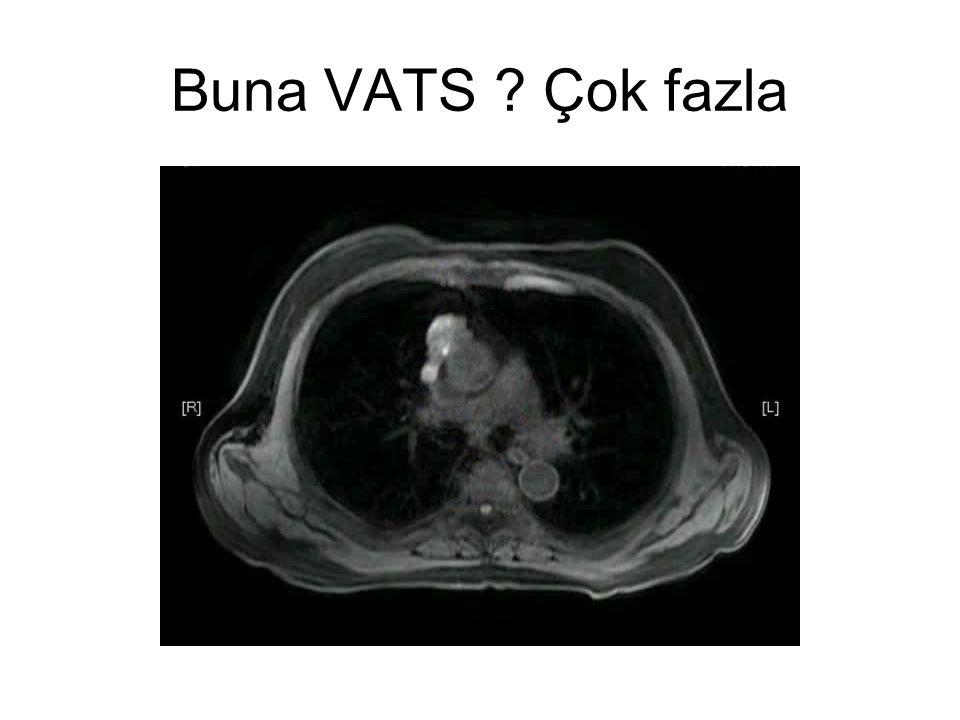 Buna VATS ? Çok fazla