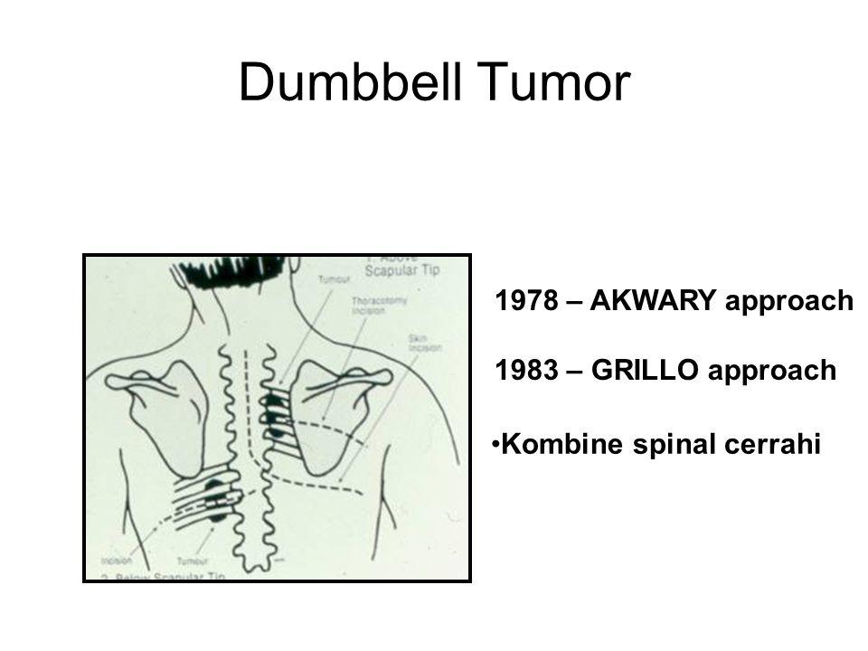 1978 – AKWARY approach 1983 – GRILLO approach Kombine spinal cerrahi