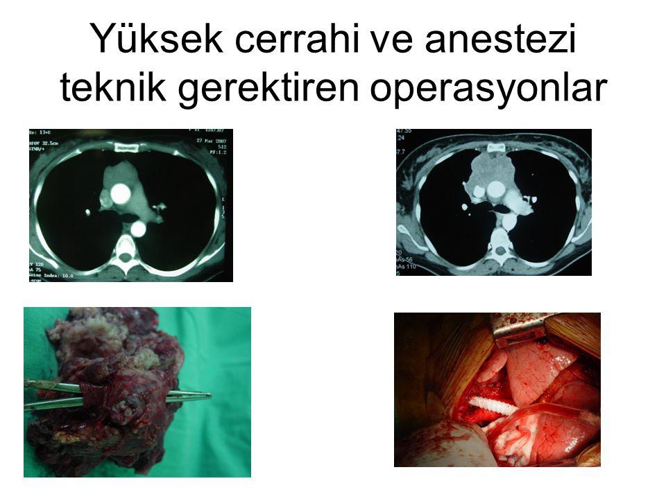 Yüksek cerrahi ve anestezi teknik gerektiren operasyonlar