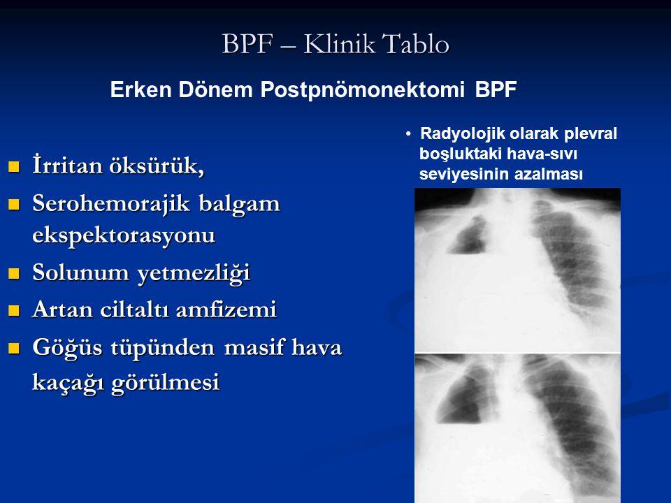 BPF – Klinik Tablo İrritan öksürük, İrritan öksürük, Serohemorajik balgam ekspektorasyonu Serohemorajik balgam ekspektorasyonu Solunum yetmezliği Solu