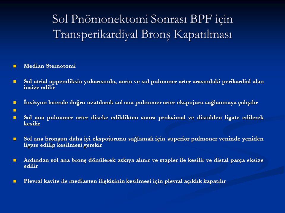 Sol Pnömonektomi Sonrası BPF için Transperikardiyal Bronş Kapatılması Median Sternotomi Median Sternotomi Sol atrial appendiksin yukarısında, aorta ve
