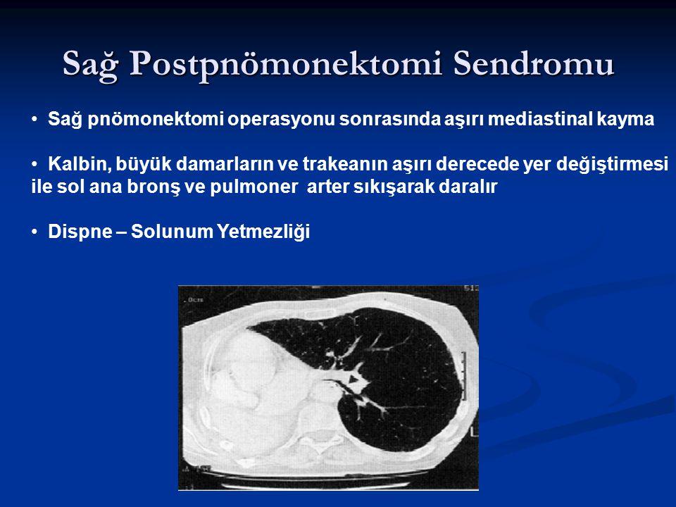 Sağ Postpnömonektomi Sendromu Sağ pnömonektomi operasyonu sonrasında aşırı mediastinal kayma Kalbin, büyük damarların ve trakeanın aşırı derecede yer
