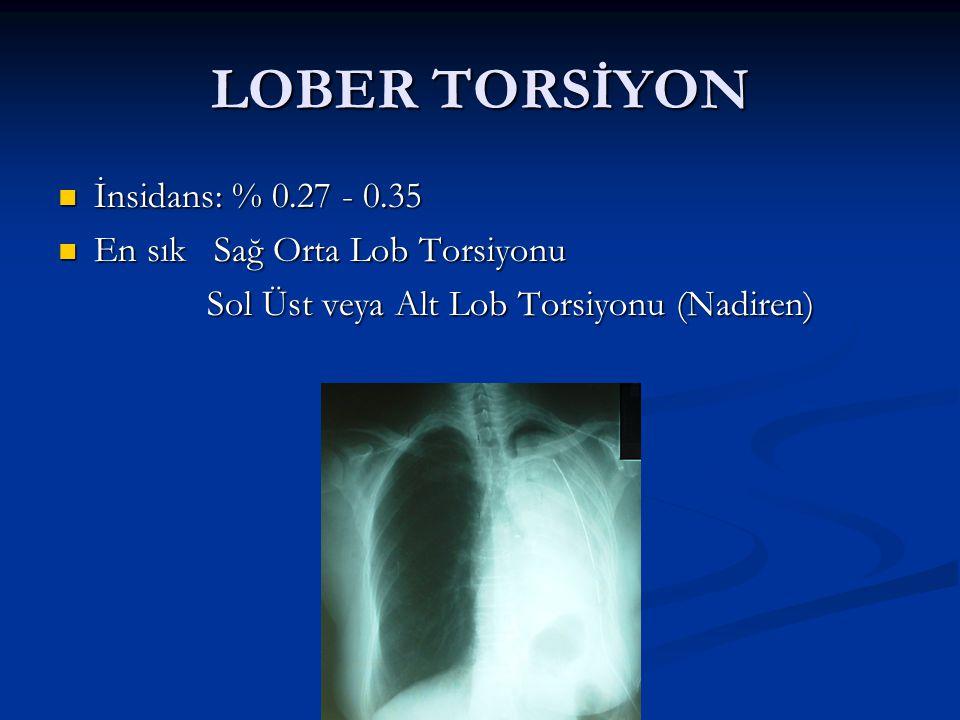 LOBER TORSİYON İnsidans: % 0.27 - 0.35 İnsidans: % 0.27 - 0.35 En sık Sağ Orta Lob Torsiyonu En sık Sağ Orta Lob Torsiyonu Sol Üst veya Alt Lob Torsiy