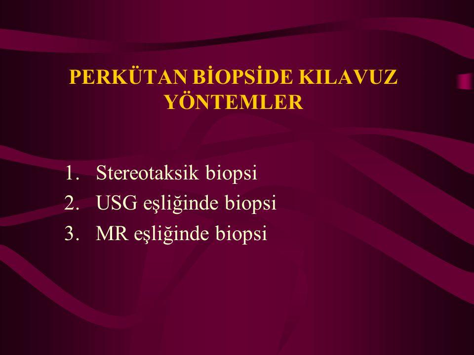 PERKÜTAN BİOPSİDE KILAVUZ YÖNTEMLER 1.Stereotaksik biopsi 2.USG eşliğinde biopsi 3.MR eşliğinde biopsi
