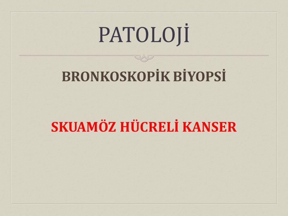 PATOLOJİ BRONKOSKOPİK BİYOPSİ SKUAMÖZ HÜCRELİ KANSER