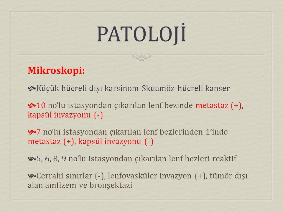 PATOLOJİ Mikroskopi:  Küçük hücreli dışı karsinom-Skuamöz hücreli kanser  10 no'lu istasyondan çıkarılan lenf bezinde metastaz (+), kapsül invazyonu (-)  7 no'lu istasyondan çıkarılan lenf bezlerinden 1'inde metastaz (+), kapsül invazyonu (-)  5, 6, 8, 9 no'lu istasyondan çıkarılan lenf bezleri reaktif  Cerrahi sınırlar (-), lenfovasküler invazyon (+), tümör dışı alan amfizem ve bronşektazi
