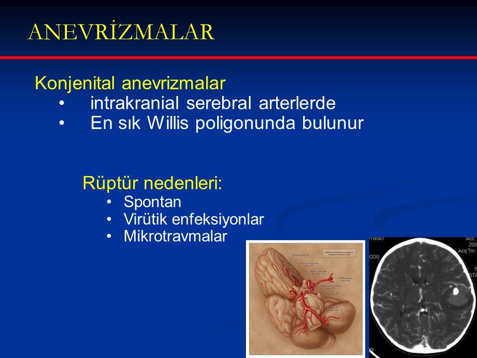 Konjenital anevrizmalar intrakranial serebral arterlerde En sık Willis poligonunda bulunur Rüptür nedenleri: Spontan Virütik enfeksiyonlar Mikrotravma