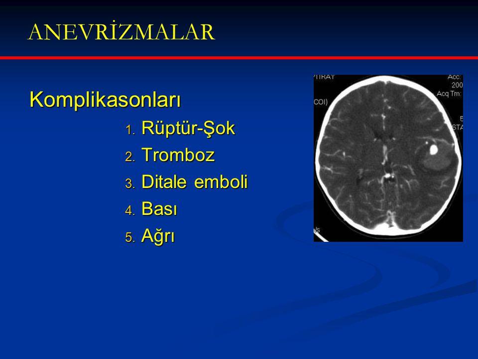 ANEVRİZMALAR Komplikasonları 1. Rüptür-Şok 2. Tromboz 3. Ditale emboli 4. Bası 5. Ağrı
