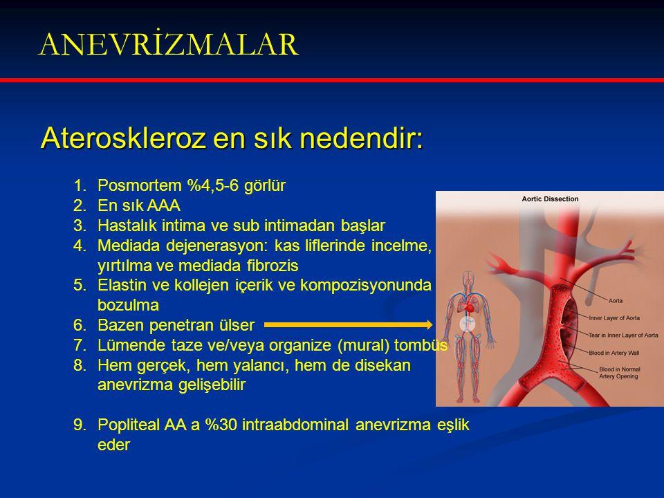 ANEVRİZMALAR Ateroskleroz en sık nedendir: 1.Posmortem %4,5-6 görlür 2.En sık AAA 3.Hastalık intima ve sub intimadan başlar 4.Mediada dejenerasyon: ka
