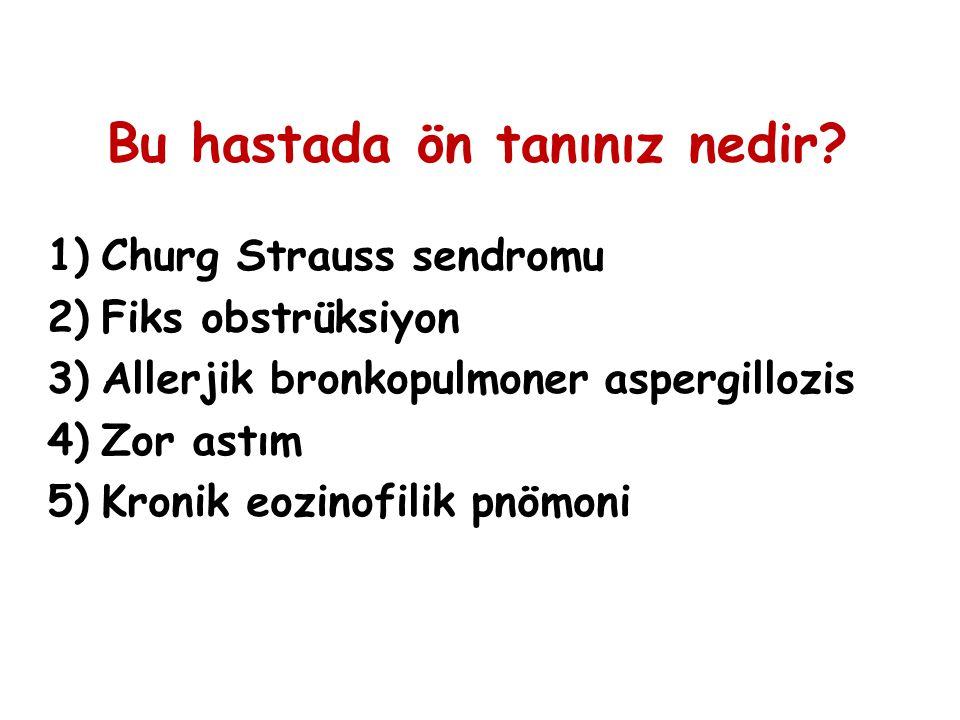 Bu hastada ön tanınız nedir? 1)Churg Strauss sendromu 2)Fiks obstrüksiyon 3)Allerjik bronkopulmoner aspergillozis 4)Zor astım 5)Kronik eozinofilik pnö