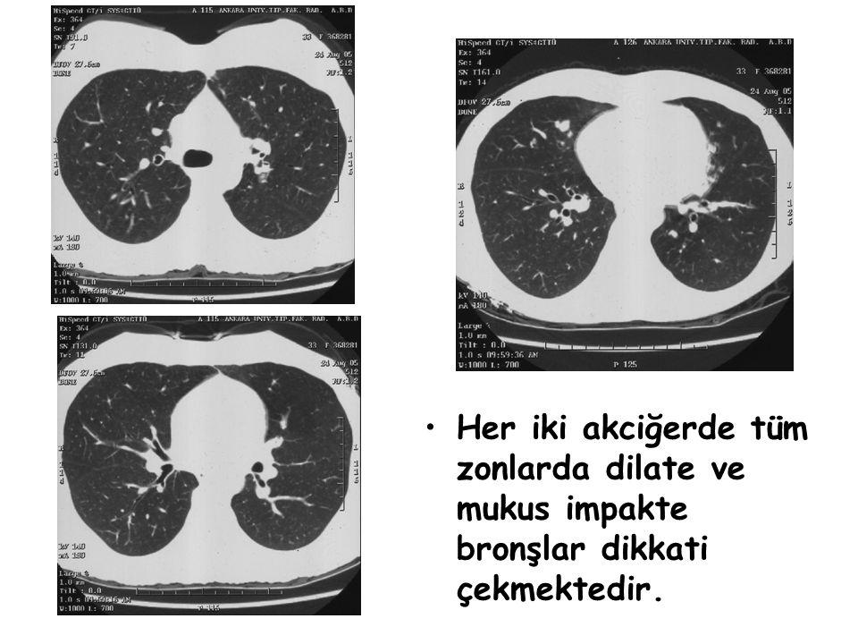 Her iki akciğerde tüm zonlarda dilate ve mukus impakte bronşlar dikkati çekmektedir.