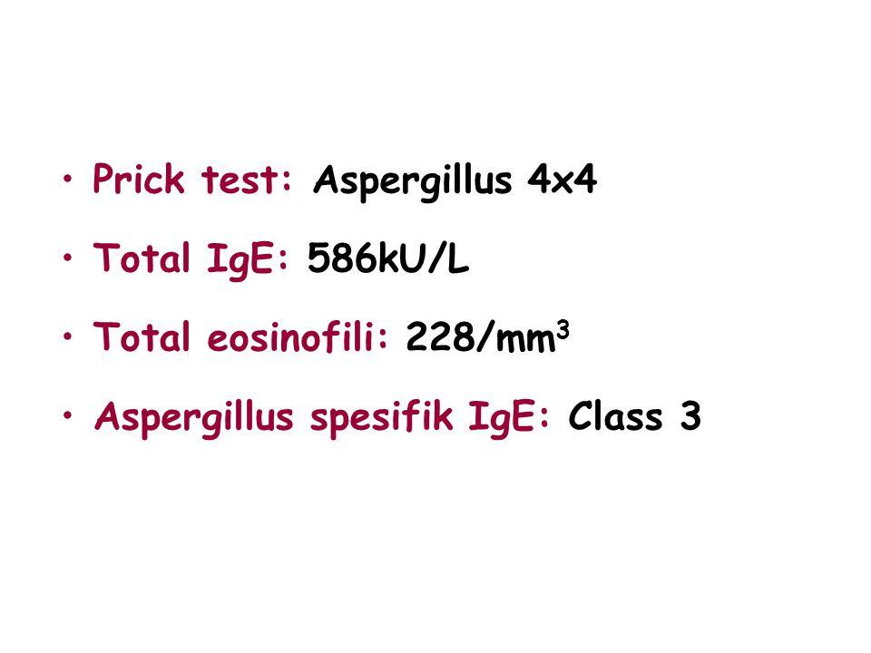 Prick test: Aspergillus 4x4 Total IgE: 586kU/L Total eosinofili: 228/mm 3 Aspergillus spesifik IgE: Class 3