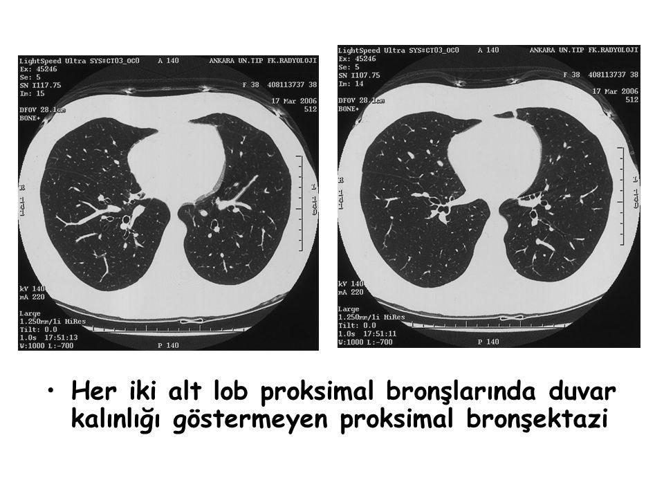 Her iki alt lob proksimal bronşlarında duvar kalınlığı göstermeyen proksimal bronşektazi