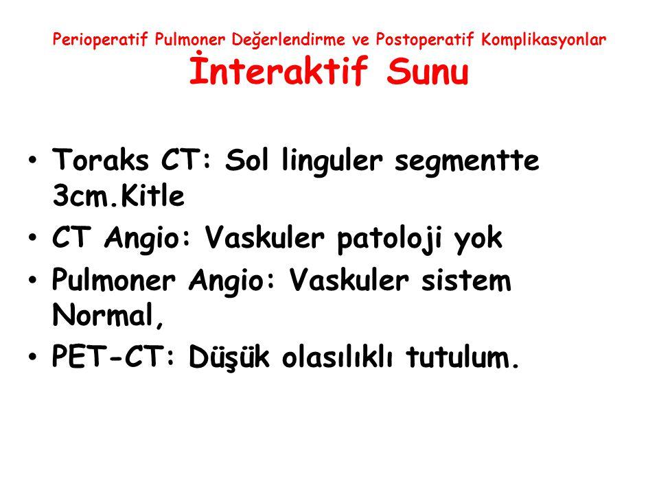 Perioperatif Pulmoner Değerlendirme ve Postoperatif Komplikasyonlar İnteraktif Sunu Toraks CT: Sol linguler segmentte 3cm.Kitle CT Angio: Vaskuler pat