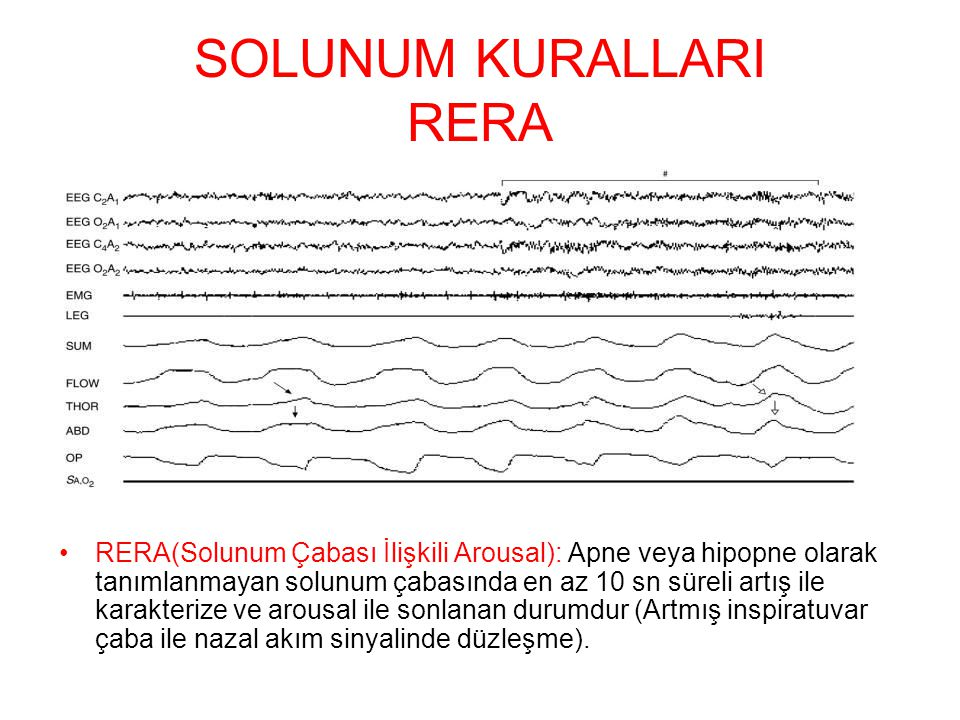 SOLUNUM KURALLARI RERA RERA(Solunum Çabası İlişkili Arousal): Apne veya hipopne olarak tanımlanmayan solunum çabasında en az 10 sn süreli artış ile ka