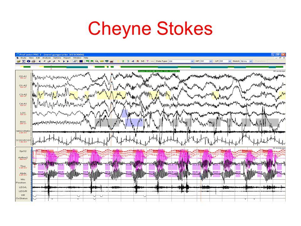 Cheyne Stokes